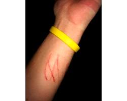 Хвороба котячої подряпини