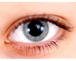 Історія хвороби по офтальмології: кератоконус