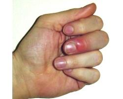 Як позбутися від задирок на пальцях?
