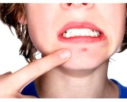 Як доглядати за шкірою обличчя при вугрової висипки