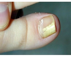Лікування грибка на нігтях ніг