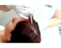 Мезотерапія проти випадіння волосся