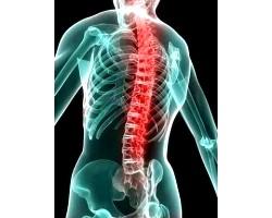 Гострий біль у хребті, причини
