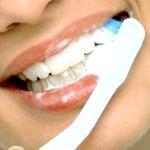 Відбілюючі зубні пасти: характеристика