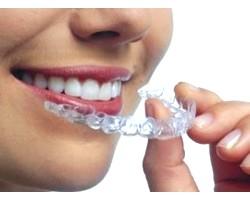 Пам'ятка при носінні зубних пластинок