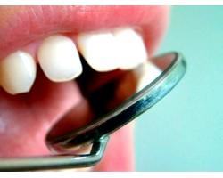 Профілактика карієсу зубів і хвороб періодонта